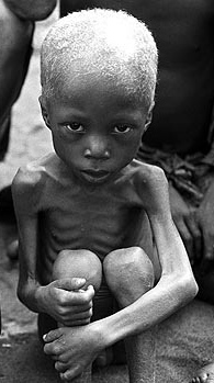 poverty and hunger in the third world essay
